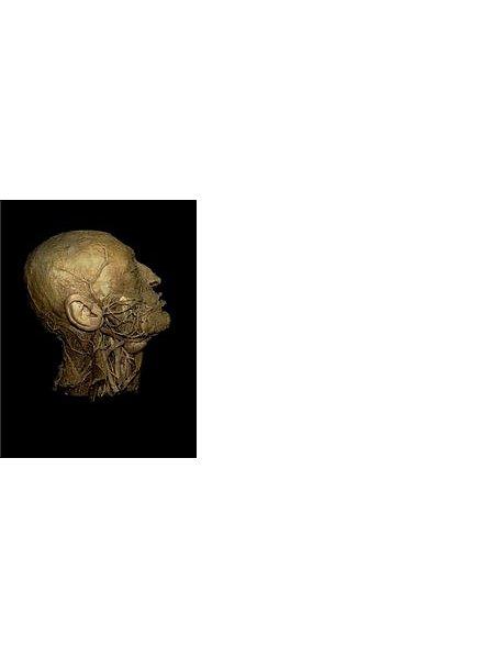 Leichenausstellung in Bielefeld: Viele andere Städte haben